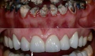 علاج الأسنان مجانا